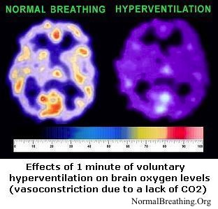 Effects of over breathing on brain oxygen levels